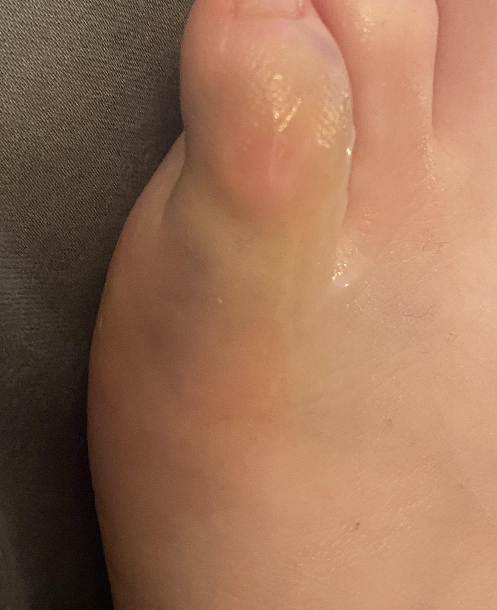 Fußzeh gebrochener Zehe (Fuß)