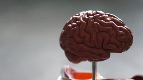 Covid-19 causa danni al cervello? La scoperta di uno studio - https://t.co/oD54Ws3ZET #blogsicilia #covid19 #coronavirus