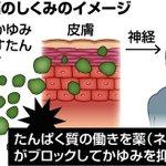 アトピー性皮膚炎患者に朗報!京大チームが新薬開発中!