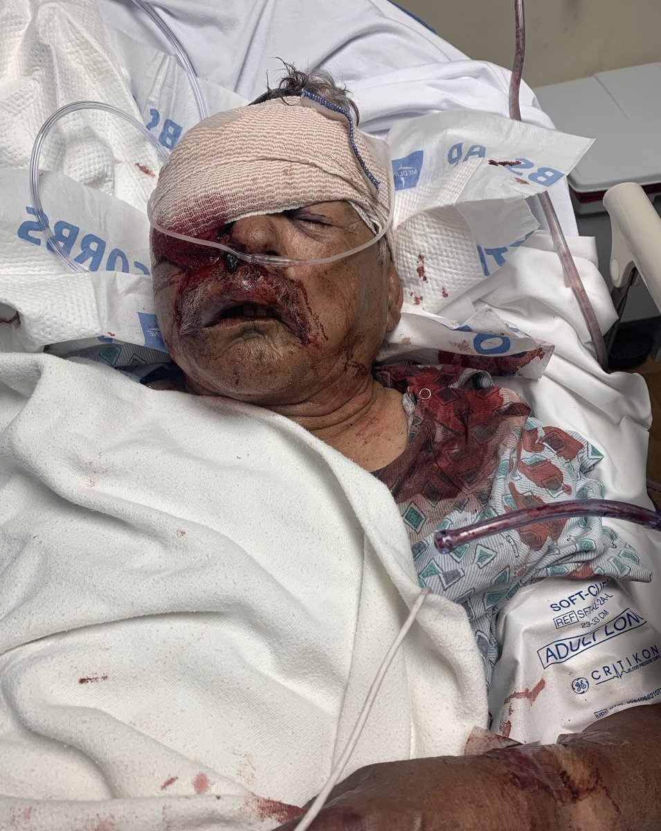PLEASE RETWEET! get the word out!! Today at 11 am my grandpa was jumped and robbed at superior on avenue j and challenger way. He was robbed and jumped an 80 YEAR OLD MAN FOR $20! If you know or have heard anything please let me and my family know. *warning graphic* TAG THE PRESS https://t.co/oBiXWkF45o