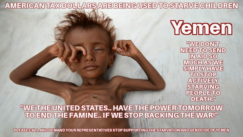 The United States Congress is appropriating American Tax Dollars for an Unconstitutional War against Yemen's Right to self determination.  #Obama and now #Trump support the starvation and genocide of the Yemeni people.   America is not woke... but we sure need to be!pic.twitter.com/fT2CMZYGn7