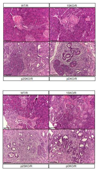 κB-Ras deficiency and consequent enhancement of Ral activity promote acinar-to-ductal metaplasia during KRas-driven pancreatic adenocarcinoma development and pancreatitis. https://t.co/jIK8wF9VNy #cancerresearch https://t.co/Cv0pGoNkGK