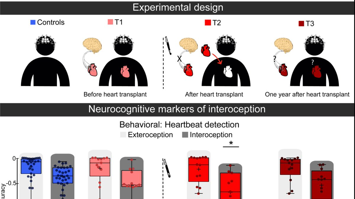 Feeling someone else's heart?: Interoceptive brain-body changes before/after heart transplant. Just preliminary published at @braincomms. Congrats @PauSalamone for your last PhD paper!  @GBHI_Fellows @atlanticfellows @UdeSA @Psicologia_UAI @CONICETDialoga https://t.co/I8t2VW5GS0 https://t.co/Db8v9fc6gi