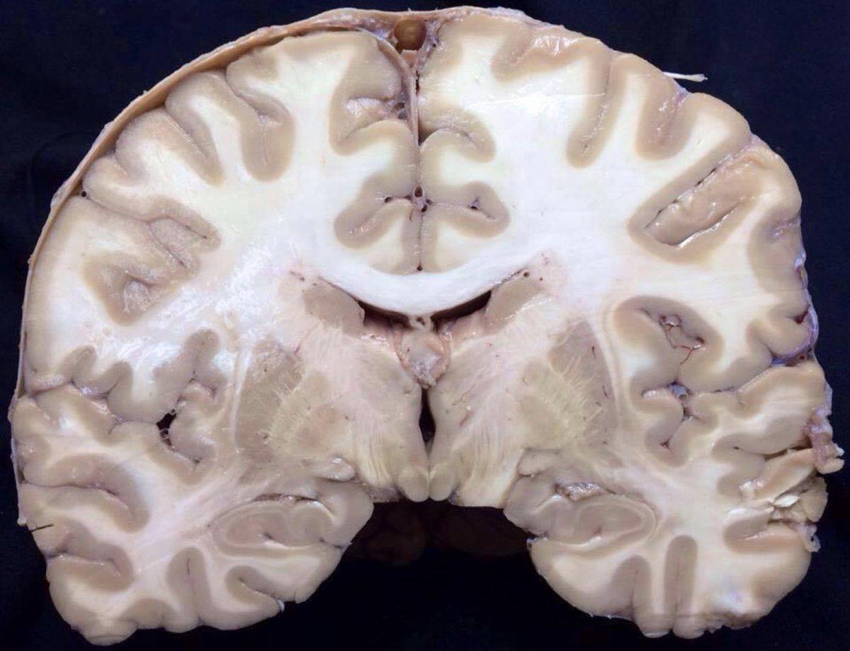 Corte de Charcot: corte coronal a nivel de los cuerpos mamilares. https://t.co/QjFUPHTqFd