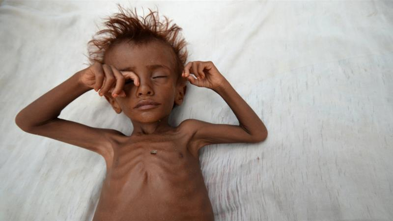 UN warns 10 million face acute food shortages in Yemen