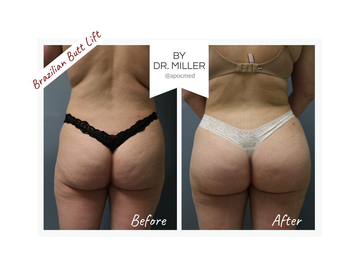 1/2 It involves 3 basic steps:  - Fat is removed from the hips, lower back, thighs, abdomen, and/or other areas with liposuction,  -Team APOC- #beauty #Health #California #Belleza #StayHome #surgery #fridaymorning #FridayMotivation #OrangeCounty #Summer2020 #Verano2020 #women https://t.co/WlrHH5nlCr