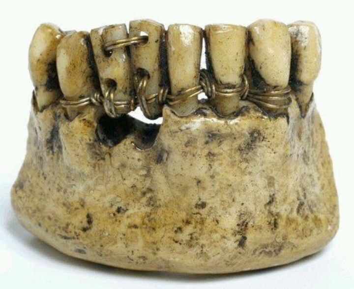 """Let's talk✨GRILLS✨ Gold teeth were first worn by women of Etruscan civilization as early as 800 BC. """"Certain high-status Etruscan women deliberately had [front teeth] removed in order to be fitted with a gold band appliance holding a replacement, or reused, tooth,"""" —John Becker https://t.co/ixpdWqihGs"""