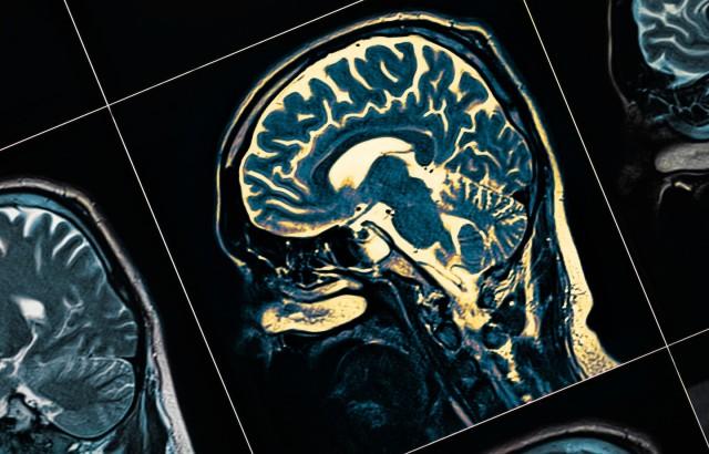 Scientists discover protective #Alzheimers gene and develop rapid drug-testing platform https://t.co/5D6IiGThJA via @QMUL   #dementia #neuroscience @cironside47 @Truthbuster @ladalavara @MarciaMacMillan @_rjardon @LtUhura2017 @realdebfarmer @CanadianCheri @DCoxAuthor @MawsonBear https://t.co/St4l0dDJel