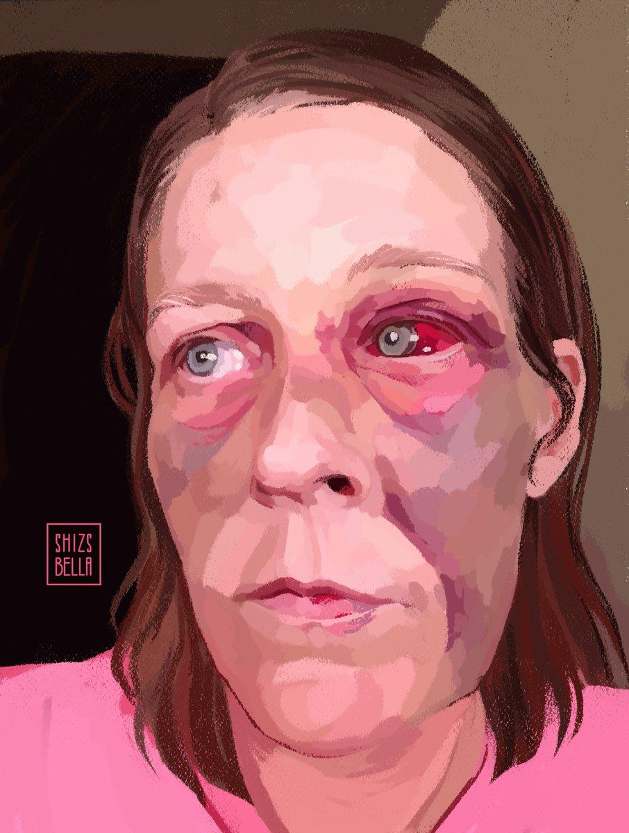 Bruises- some emotional some physical... Portrait study #portrait #portraitstudy #digitalillustration #digitalportrait #digitalart #artwork #painting #artistsoninstagram #art #bruises #face #drawing #madewithwacom #wacom https://www.instagram.com/p/CCesDO5HNzR/?igshid=1xxtbnhcbrzqx…pic.twitter.com/BJbuBK2Bib