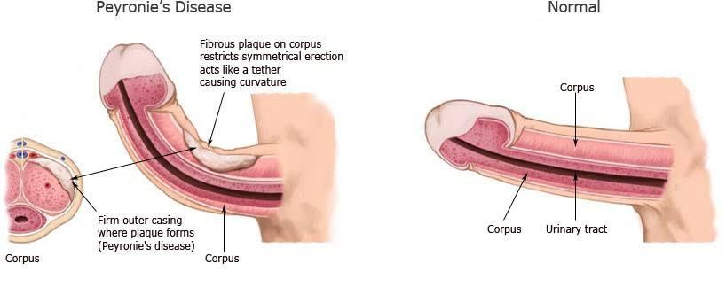 Pin on beat erectile dysfunction naturally