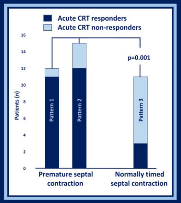 La contracción septal predice mejoría con la #RSC / Septal contraction predicts acute improvement & paced QRS width reduction in #CRT  @ESCardioNews https://t.co/vrZBBlEQHZ @iamritu @chemaimagencv @onco_cardiology @mariovar55 @SIAC_cardio @purviparwani @AlexBJanjic @ThorEdvardsen https://t.co/MFX4ZijPnv