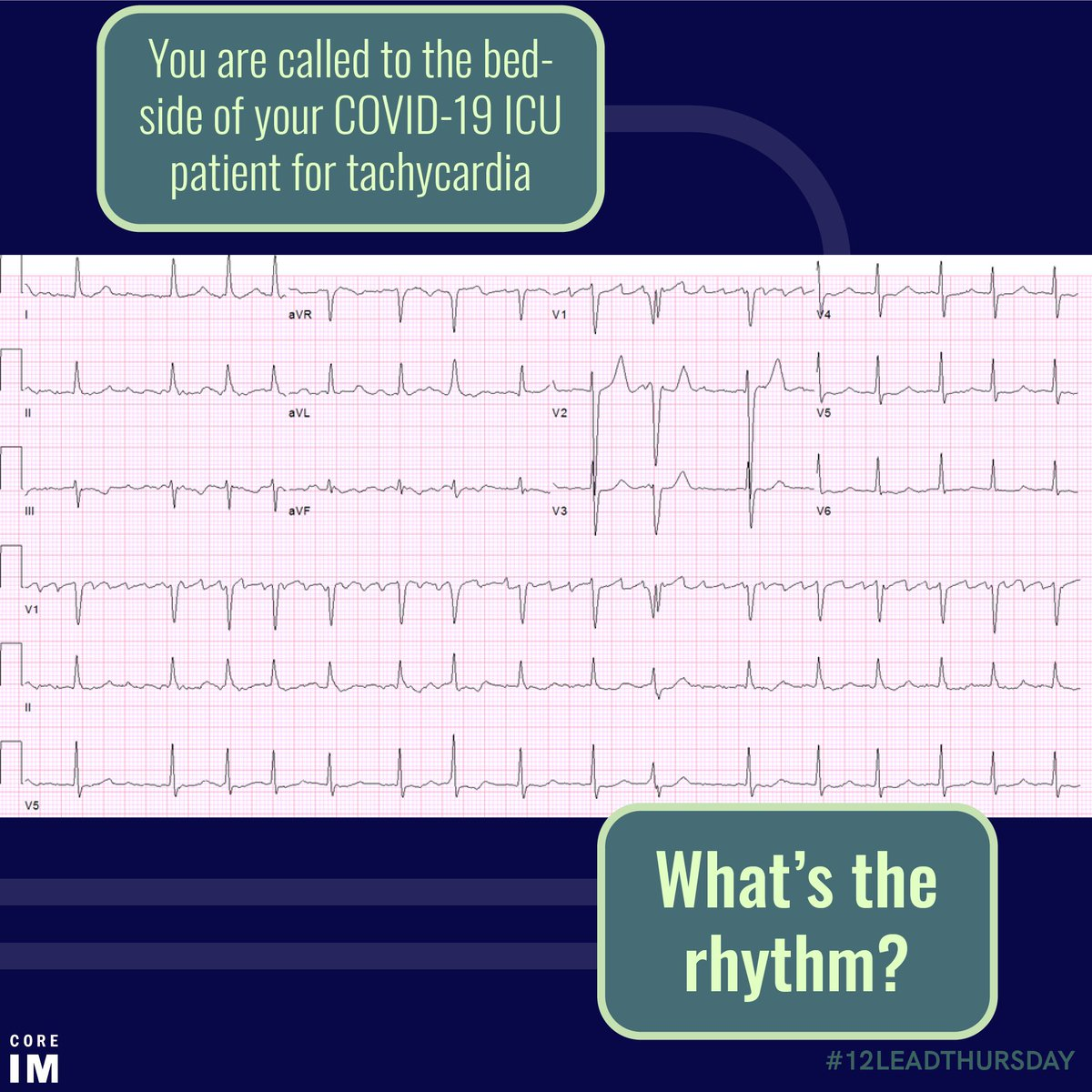 1/ Welcome back, #medtwitter, to the latest installment of #12LeadThursday - #covid19 edition! Let's put those calipers to work! Take a look at this ECG. Approach it systematically. What do you see?