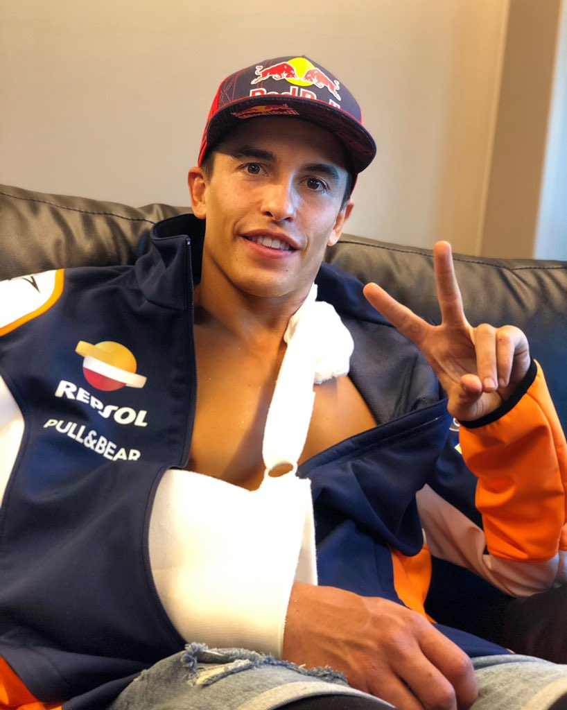 Sometimes things don't go as you expect but the most important thing is to get back up and move on. I hope you enjoyed the comeback! Now I'll have an operation to fix the fracture of my right humerus. I promise you all that I will come back as soon as possible and even stronger💪🏼 https://t.co/5FCIamVZLx