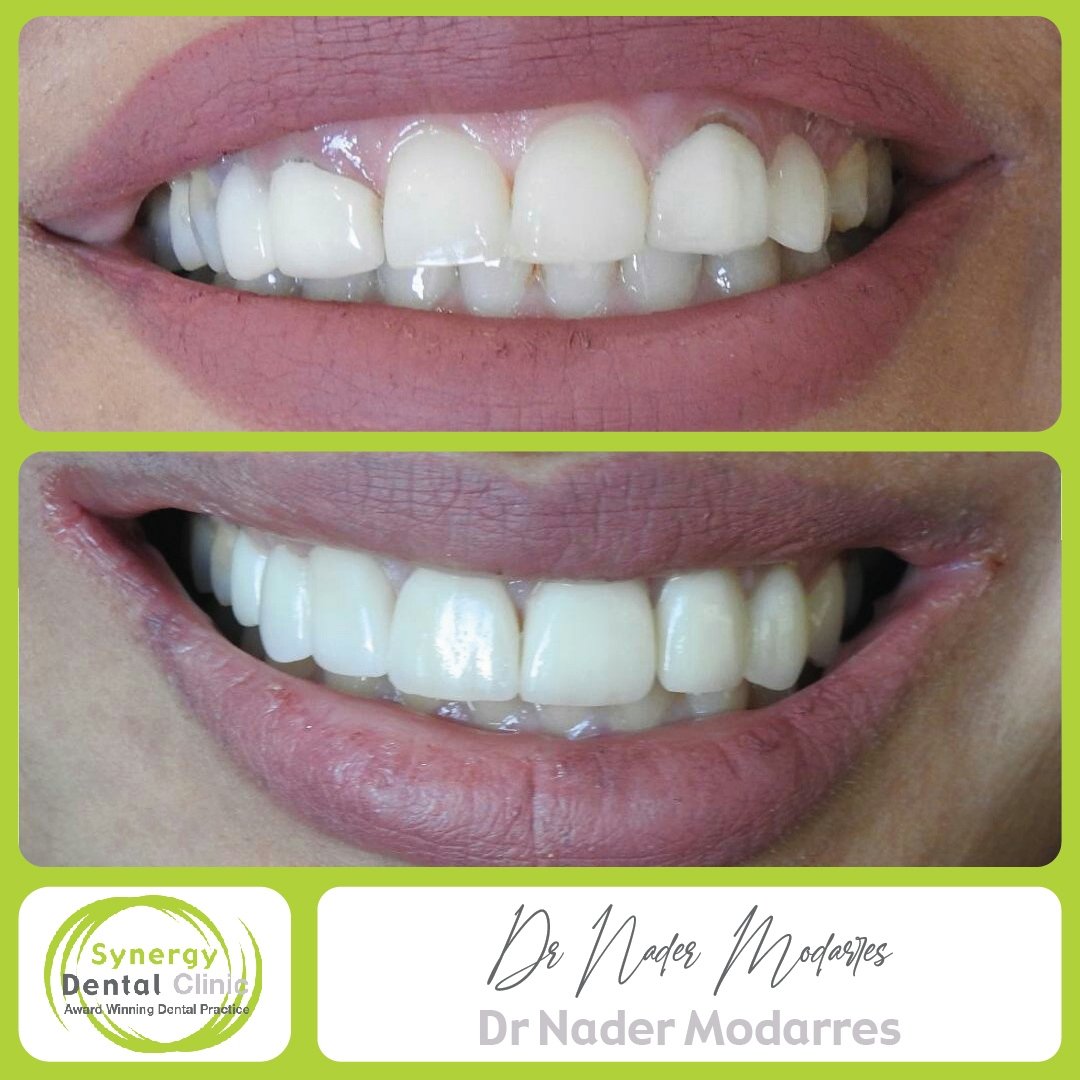 ✔️Zirconia crowns ~ ✔️Crown lengthening (Gum lifting surgery) ~ ✔️Patient much HAPPIER!! . . #toothwhitening #teethwhitening #airflow #scaleandpolish #teeth #whitesmile #whiteteeth #toothbleaching #stainremoval #enlightensmiles #cosmedent #smilemakeover https://t.co/UyzFylu1hM