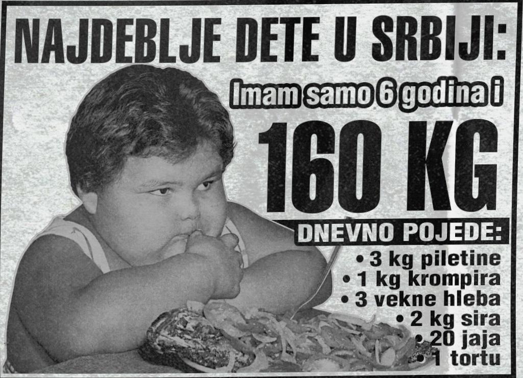 Najdeblje dete u Srbiji ima 6 godina i 160 KG