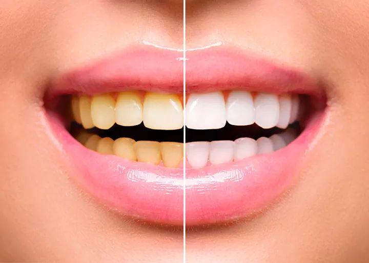 Clareamento Dentário  Meus dentes podem ser clareados ?  Acesse: https://renatapescadinha.com.br/service/clareamentodentario/… e veja tudo sobre clareamento dentário.  Ou Marque agora sua consulta: Telefone: (21) 22443108 WhatsApp: (21) 998581875   #clinicadentaria #harmonizacaofacial #botox #clareamentodentario pic.twitter.com/0mj7x6zI6g