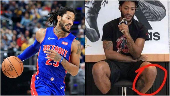 成功有多不容易!NBA球星的那些傷疤:羅斯的膝蓋,Kobe的跟腱,詹姆斯的頭部!