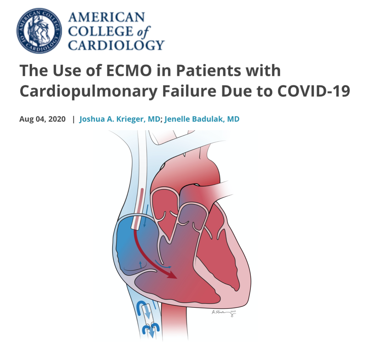 ECMO in cardio-pulmonary failure due to #COVID19, expert analysis: #ECLS can be successfully supported implemented,  but judicious pt selection mandatory to en able maximal benefit/optimized outcomes, considering limited resources availability @ACCinTouch https://bit.ly/3kpBnuU pic.twitter.com/EXiqAxdzbT