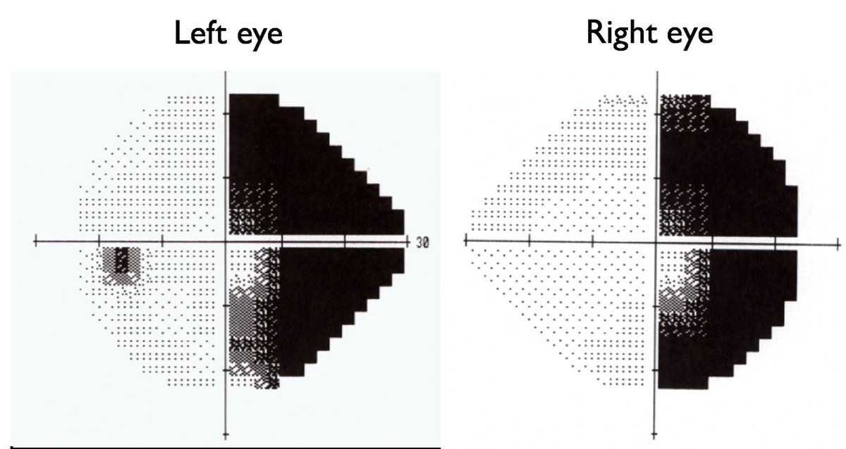 OK, Neurophiles... next clinical/neuroanatomic question to ponder: What is the likely etiology of this visual field defect, and how do you know? Reply with your thoughts! #neurotwitter