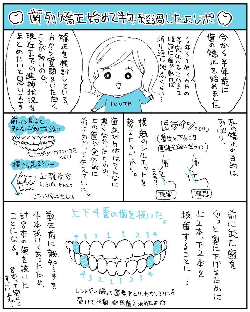 歯列矯正を始めて半年経ったよレポ(1/2)歯列矯正のことをよく聞かれるので漫画にしました〜!まだちょうど折り返し地点ですが、まるで生き物のように順調に歯が動いてってます🦷