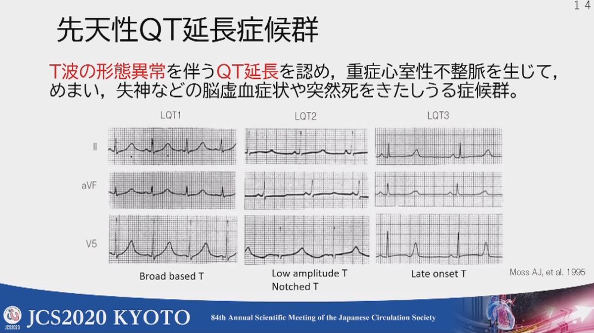 "M.Fukuda 循環器内科医/産業医 على تويتر: ""<まとめ> ・学校心臓検診 ..."