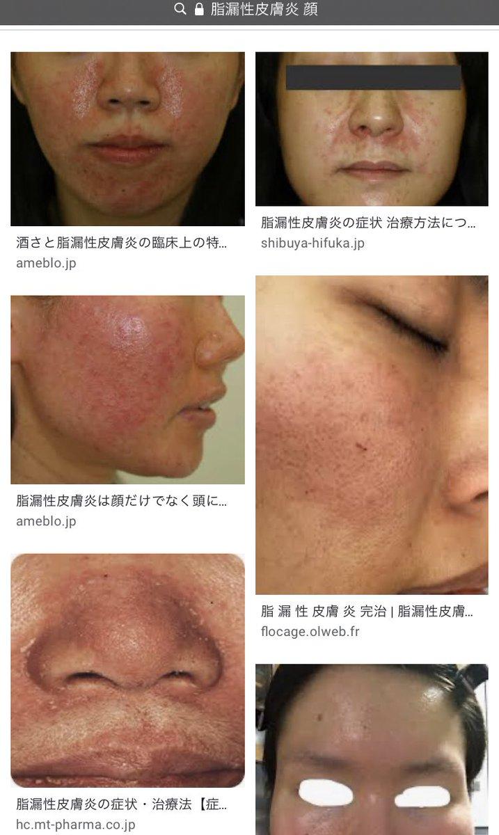 漏 炎 方 治し 性 脂 皮膚