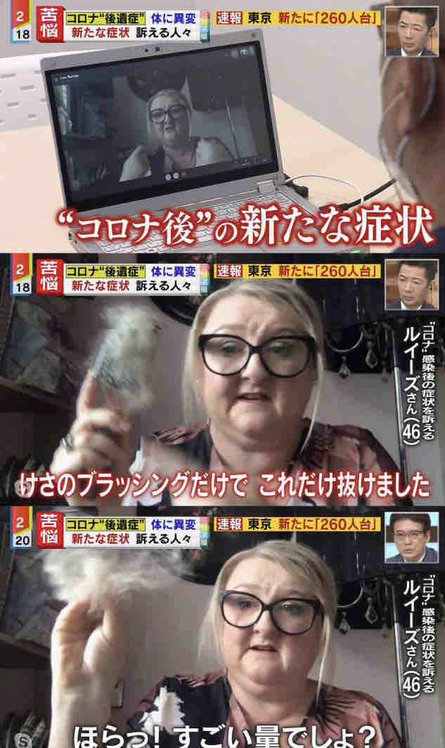 コロナ 庄司智春 庄司 陽性 コロナ後遺症に関連した画像-04