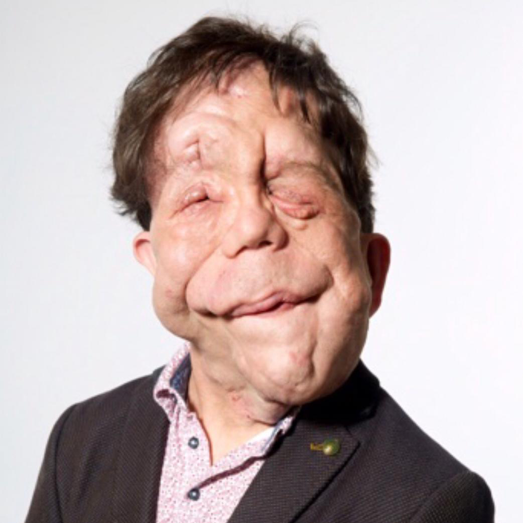 """'Prior to the Covid-19 outbreak, as far as disability and inclusion was concerned, the industry was very much broken. And now we're in the midst of Covid, the industry is pretty much broken for everyone. Welcome to our world!"""" - @Adam_Pearson #PressReset"""