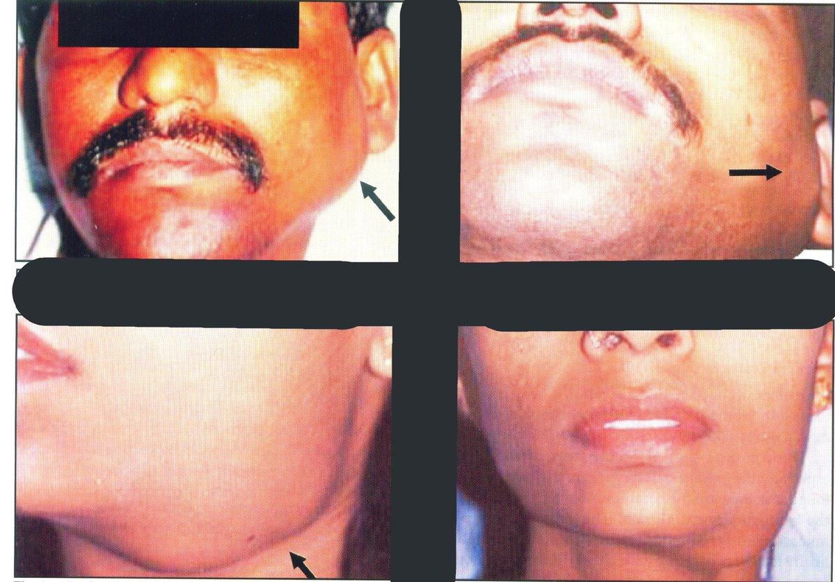 sialadenitis: infection of salivary gland  sialsdenosis: non-inflammatory , non-neoplastic swelling of salivary gland .  #medicalstudent #medicines #medicine #طبيب_الغلابة_في_ذمة_الله #طب #طبيب_الغلابه #طبيب #doctorsday  #medic #Medicos #MEDICALCLINIC #my252 #Somalia #endocrine https://t.co/MyPGOsR2Jz