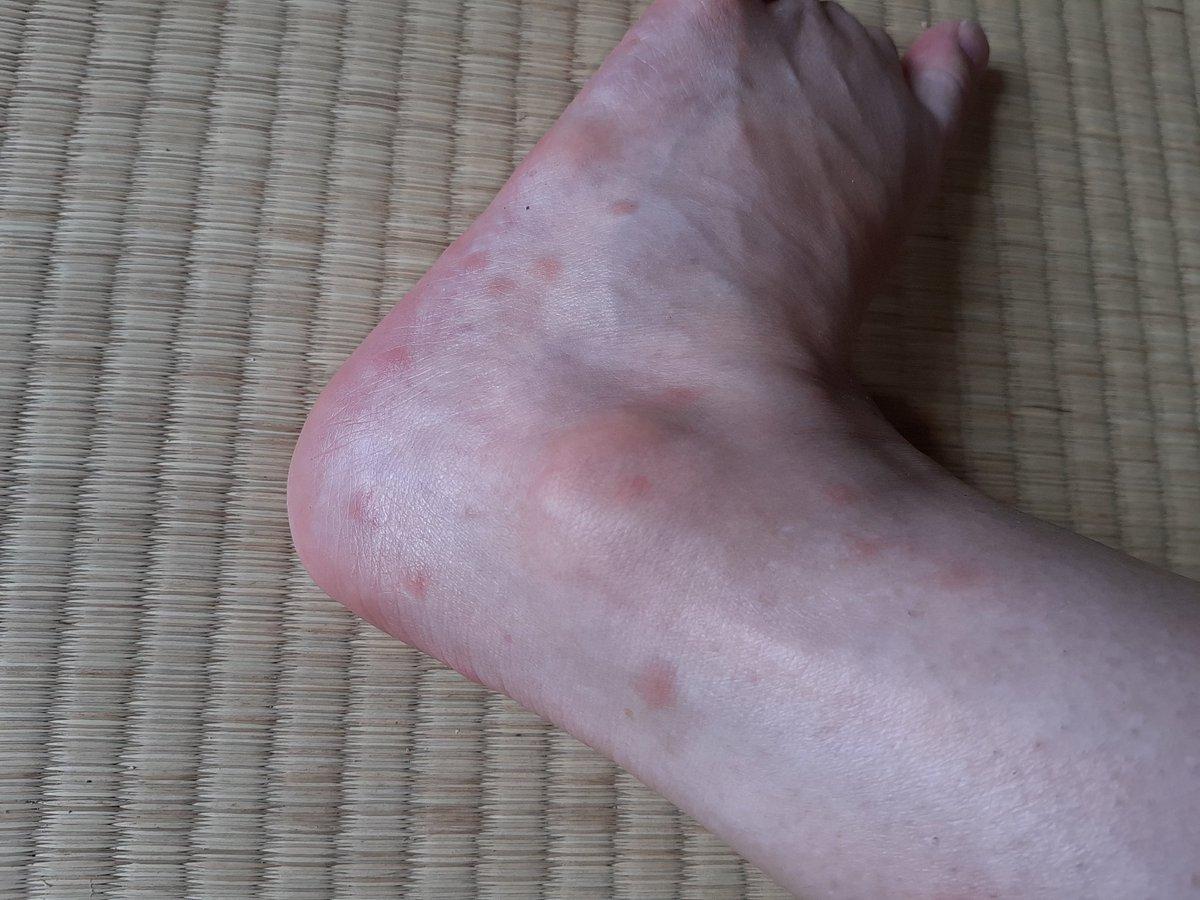 の 痒い 足 裏