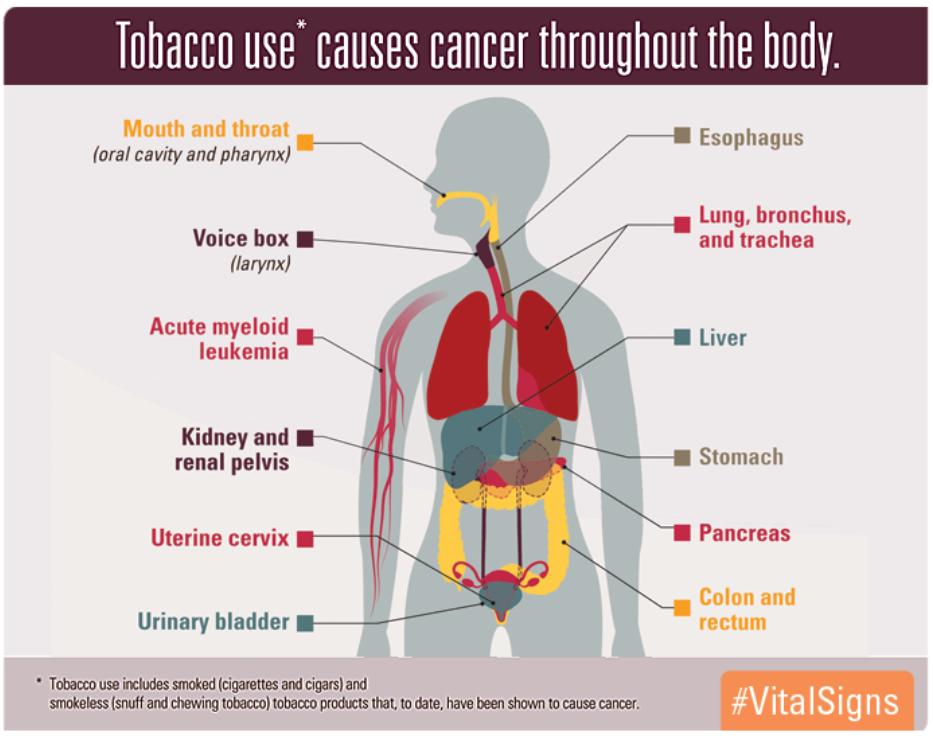 @CDC_Cancer's photo on #WorldLungCancerDay