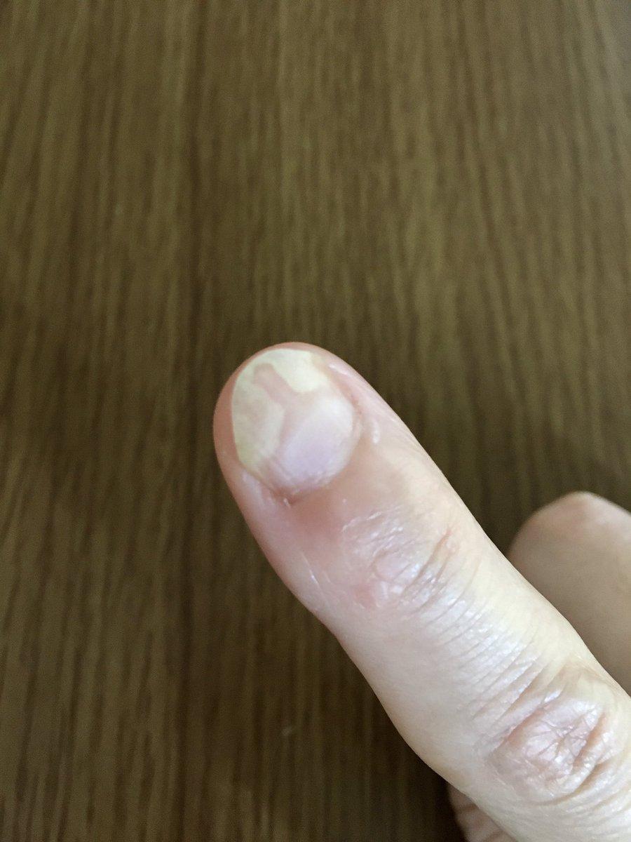 が の 爪 親指 た 剥がれ の 足