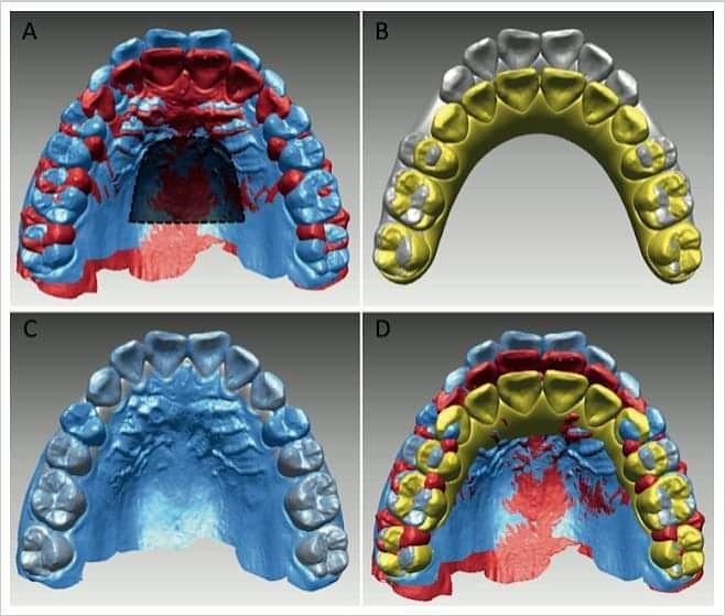 Comparação do movimento dentário previsto e alcançado, dos primeiros molares superiores e incisivos centrais: tratamento com extração do primeiro pré-molar com Invisalign.  http://www.ortodontiacontemporanea.com/2020/02/comparacao-do-movimento-dentario.html…pic.twitter.com/vmktTlSAlO