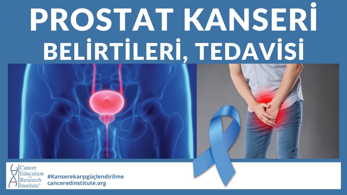 Yeni Video: #Prostatkanseri'nin erken ve ileri safhadaki belirtileri ve tedavi seçenekleri nelerdir? Yeni videomuzu izleyin ve ve çevrenizdeki baylarla paylaşın, hayat kurtarmamıza yardımcı olun! https://youtu.be/LJgE4Y0Jwvc  #prostat #erkek #saglik #kanserpic.twitter.com/nAgssBZhuy