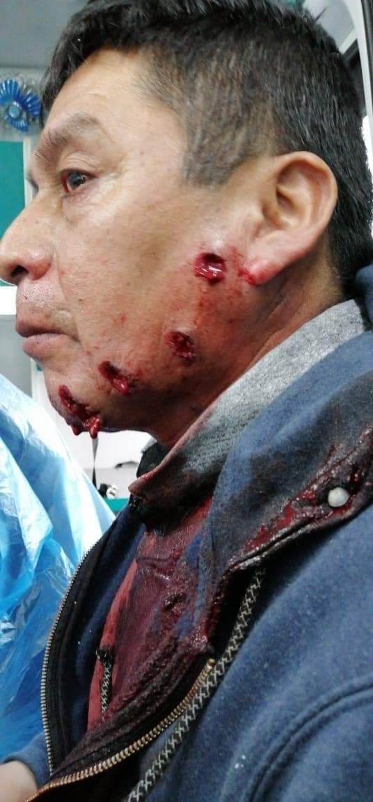 Hoy feroz represión de @Carabdechile en Lumaco, fotos de @info_werken corresponden al lonko Juan Nahuelpi del Lof Liucura, herido con perdigones en su rostro. Por favor difundir en sus redes. https://t.co/KNdoaqcwq1