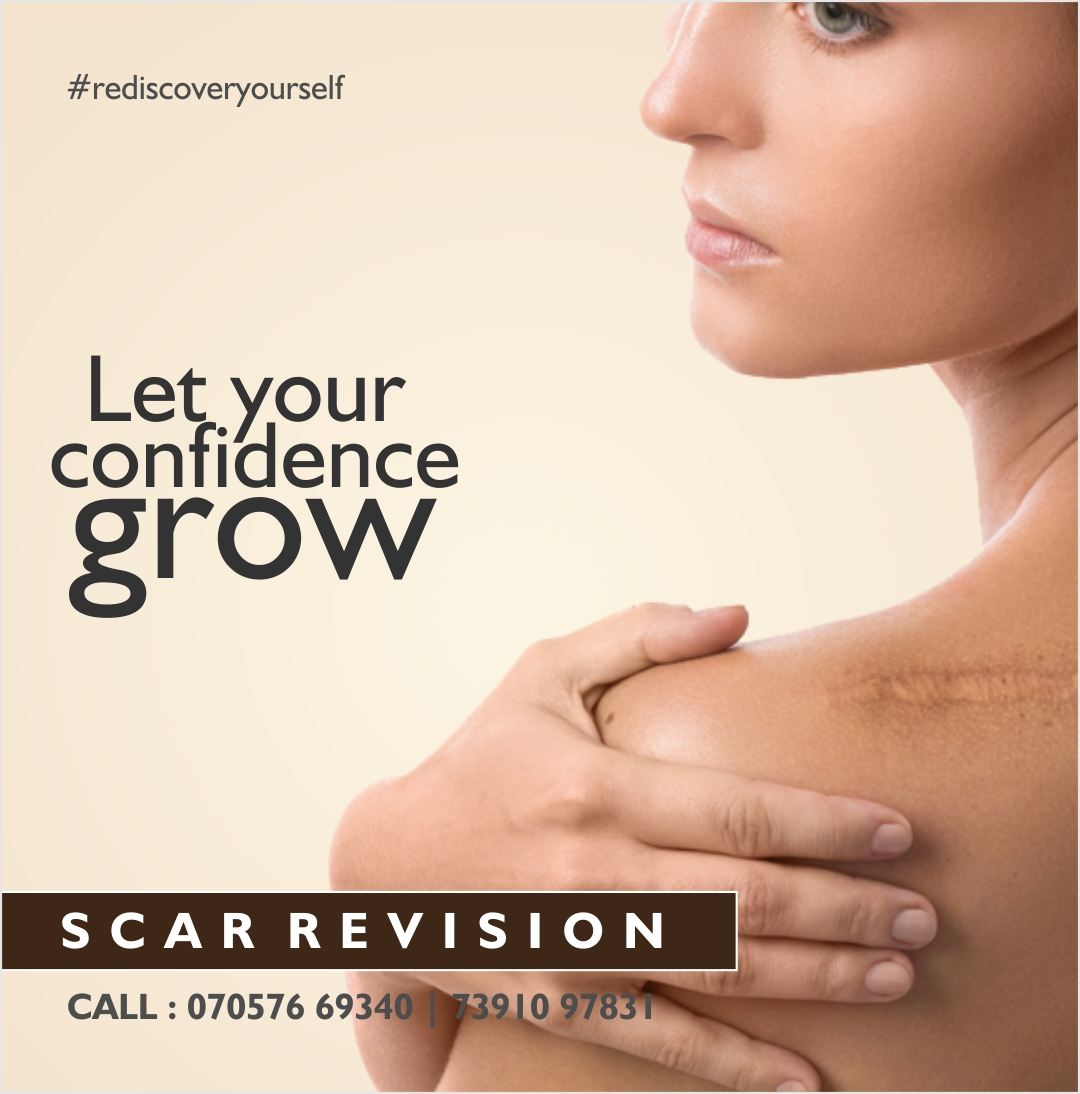 #rediscoveryourself Let your confidence grow   SCAR REVISION ~  CALL : 070576 69340   73910 97831 http://www.dhanwantarischrysalis.com  #rediscoveryourself #letyourconfidencegrow #scarrevision #injuryscars #removescars #plasticsurgery #bebeautiful #skintreatment  #ent #vocalforlocalpic.twitter.com/agfHj5A48b