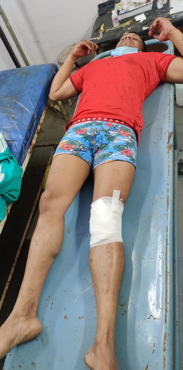 DJ Halli rwdy shtr Anees Ahmad abscndg fr mre thn 2&hlf yrs.Invlvd in mre thn 15 cses like, murder,atmpt2murder,robbery,hurt etc, @Kghallips PI Ajay Sarathi opnd fire on his leg in slf dfns while he ws tryg 2 escpe Nr rolling mill,@DgpKarnataka @CPBlr @DCPEASTBCP @VipinGaurnai https://t.co/57ZdlW5Nr7
