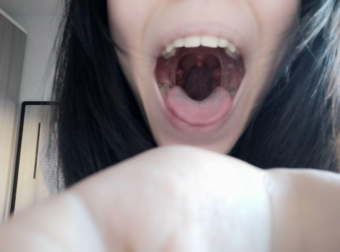 4 pic. Let's play a little game, I see that my mouth fascinates you ... I'm going to open it little by