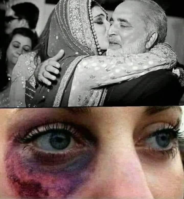 جب بیٹیوں کو رخصت کیا کریں تو انھیں بتایا کریں کہ ہم نے انسان کا بچہ دیکھ کر رشتہ طے کیا ہے اگر جانور نکل آٸے تو واپسی کا دروازہ کھلا ہے اس کو چھوڑ کر واپس آجانا کیونکہ شادی دوبارہ ہو سکتی ہے اور اسلام میں ایسی کوٸی قید نہیں اور نہ ہی گھر کا ٹوٹنا گالی ہے ۔.