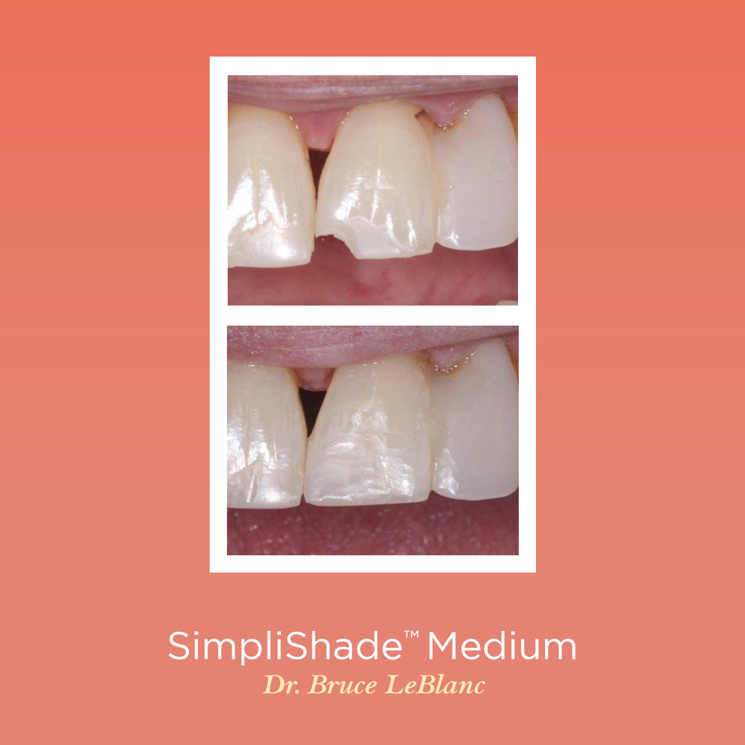 """""""Easy and seamless color blend, great polishability, no slumping, it performs as promised. I highly recommend using this product."""" - Bruce J LeBlanc, DDS from Baton Rouge, LA  Available on August 24th with a limited time offer! https://t.co/qB9RjKBOfe https://t.co/D3QPAgswhz"""