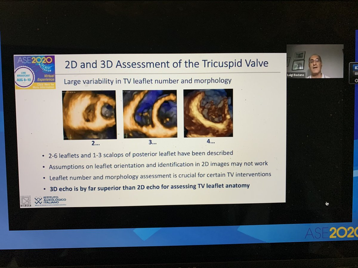 Excellent Lecture on 3D imaging of the TV by the master of 3D @lpbadano @ASE360 #ASE2020