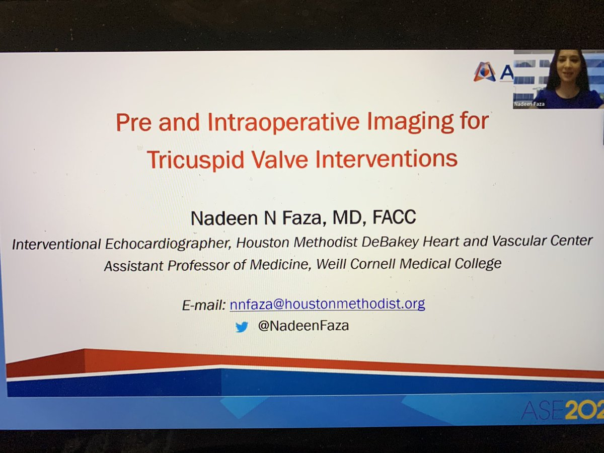 Happening now! @NadeenFaza presenting! One of my favorite #Valvuholic friends!❤️ #ASEvalves #ASE2020 @ASE360