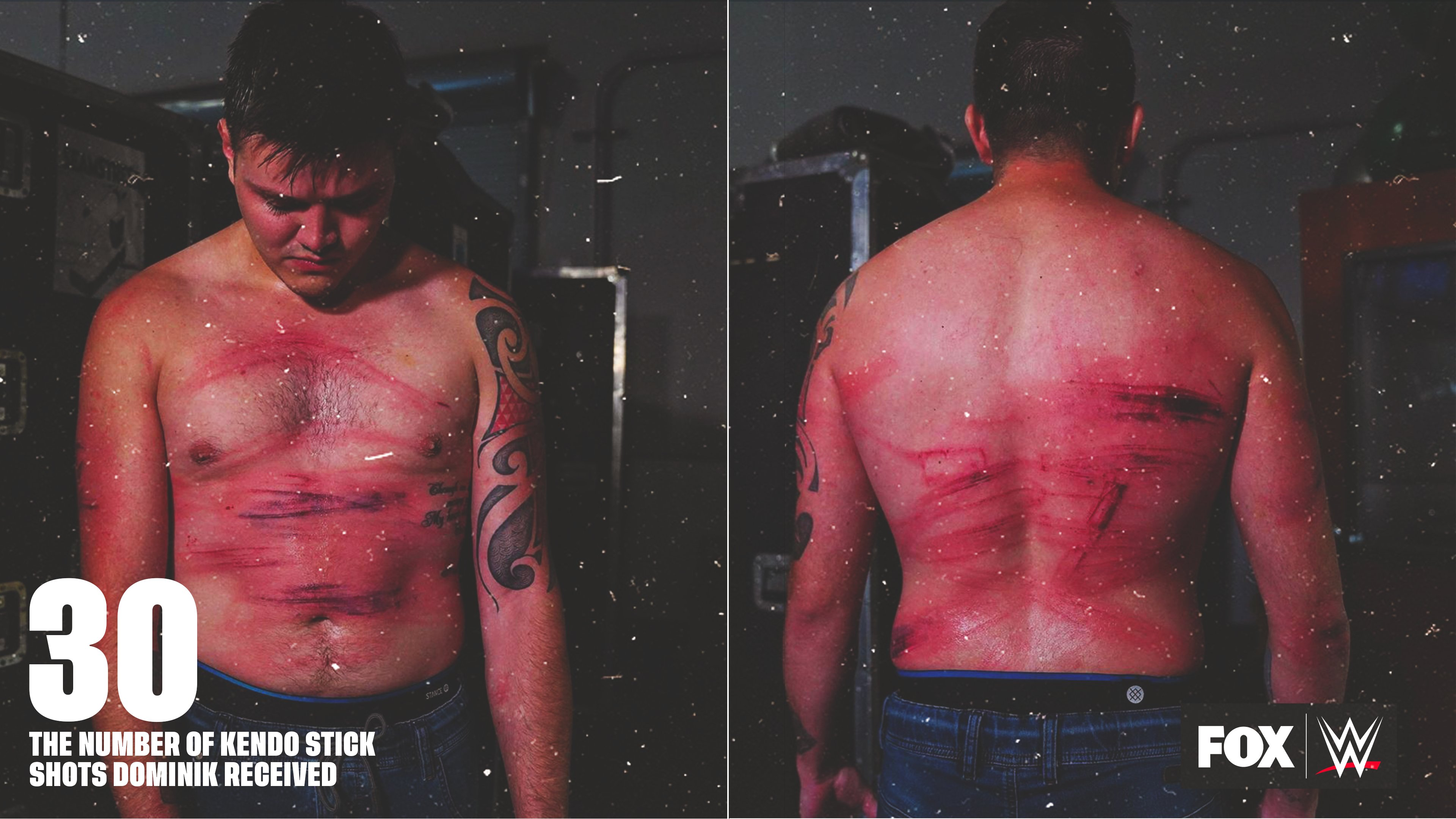 Dominik Mysterio Shows Scars From Beatdown On WWE Raw 1