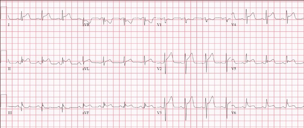#ECG Quizz: A 22-year old college student complains of sore throat, fever & chest pain. (Courtesy @DrJMarine MD, Vice-Chair, Cardiology, @HopkinsMedicine ) #MedEd #CardioEd @OSUWexMed @OhioStateHeart @CNCFCardio @BayviewMedicine @BCM_InternalMed @cjchiu @AvrahamCooperMD @CLOSLER