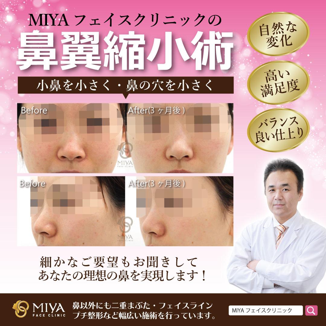 鼻翼縮小術は、自然な変化でバランスのいい仕上りができます。小鼻の形を小さく整形し、鼻の横幅や鼻の穴の大きさを小さくスッキリする手術です。細かなご要望もお聞きして、あなたの理想の鼻を実現します。その他鼻のお悩みも、ぜひご相談ください。#宮里裕 #小鼻縮小