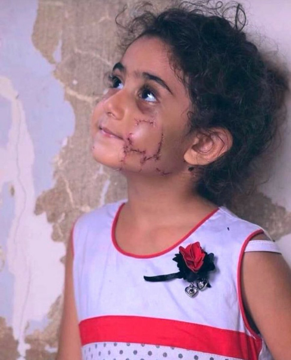 #Yara is like #beirut 🇱🇧 , #scarred , scared  ,in pain , yara didn't understand #why all of this happend, #who did this and what will happen next, but she is #faithful , she is trying to smile , searching for a #change for a better tomorrow... ❤ https://t.co/yRXmdlPRPH