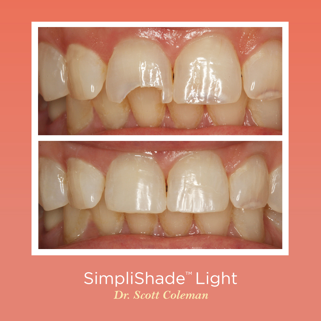 """""""It really did surprise me with its ability to blend very well with both incisal edge and surrounding tooth structure."""" – Scott Coleman, DDS, MAGD from Houston, TX Available on August 24th with a limited time offer! https://t.co/onccNVm2zk https://t.co/jPvmaNSb7g"""