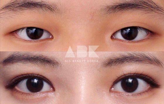 #二重整形 韓国では、「目と鼻までは美容整形ではない」と言われるほど一般化しており、卒業祝いに両親が二重手術をプレゼントしてくれることもあります。ただ、リスクを伴う手術ですので、専門医とのカウンセリングを丁寧に行うことが大切です😊💌ABK LINE⇒