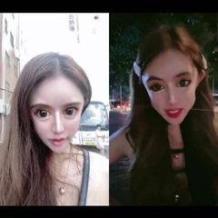13歳から100回の美容整形を受けたナナさん、顔面が崩壊寸前  現在15歳の彼女だが、整形手術を13歳から始めたのだという。13歳から15歳までの3年間でおよそ100回の整形手術を行い1600万円以上の費用をかけ、眼・鼻・唇・脂肪吸引を繰り返し行ってきたといううわぁ・・・