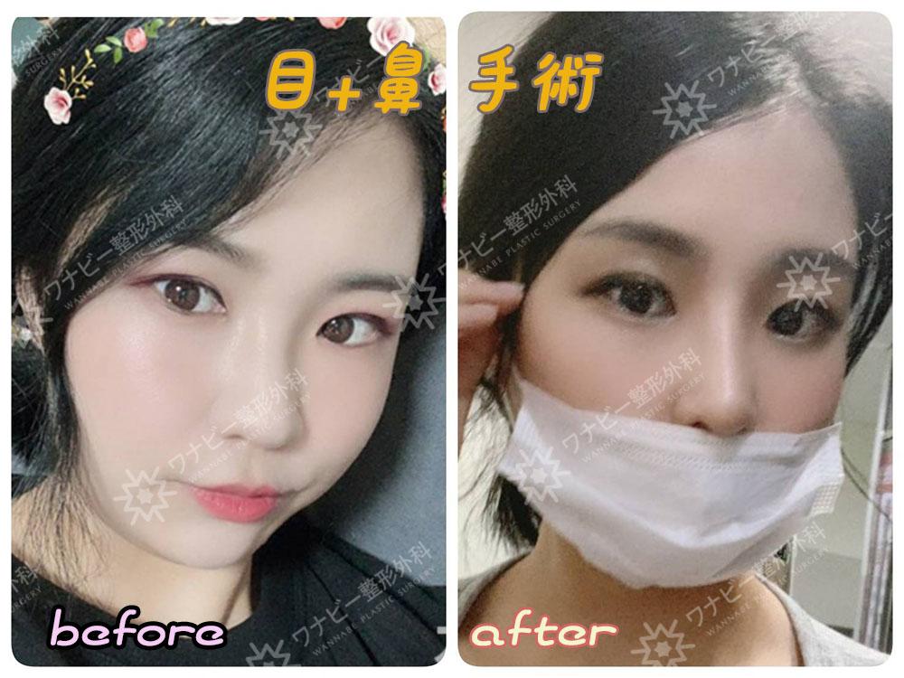 【目+鼻】ワナビーでワンランク上の美人に😍目と鼻は同時に手術可能です👍当院公式LINEにて写真またはテレビ電話カウンセリングを行っております‼️LINE▷@wannabeps (@まで含めてください)#二重手術 #鼻手術 #韓国整形 #整形
